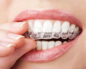 Melbourne Teeth Whitening